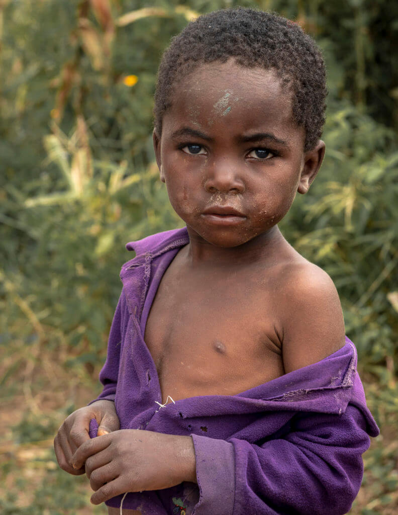 Refugee child – Malawi